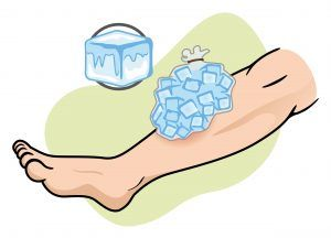 Ice compress on leg.