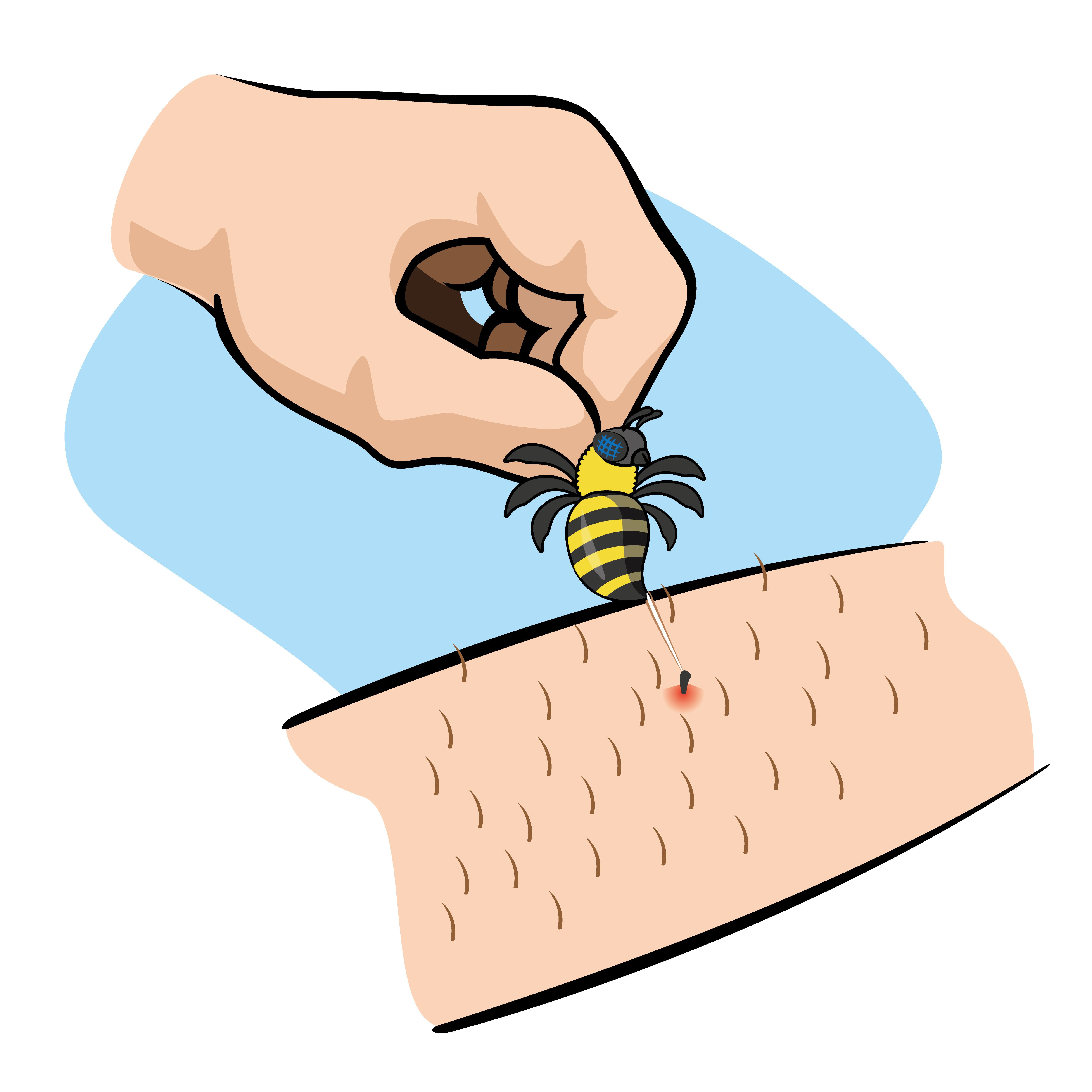Cartoon picture of bee stings.