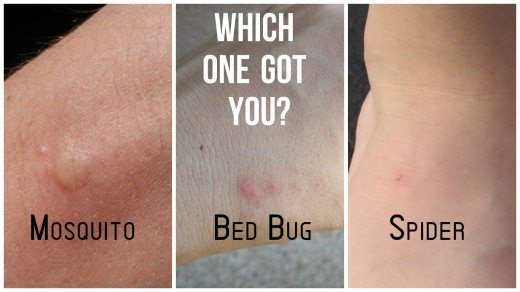 Spider Bites Vs Bed Bug Bites What S The Difference