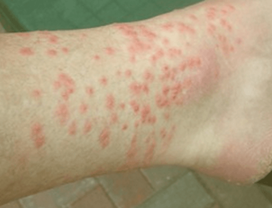 Chigger bites symptoms on human's foot.