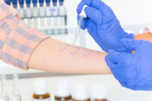 Medical doctor doing allergy tests in laboratory
