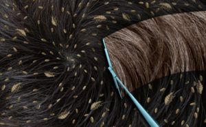 Lice Vs Dandruff Different Symptoms How To Treat Them Pestwiki