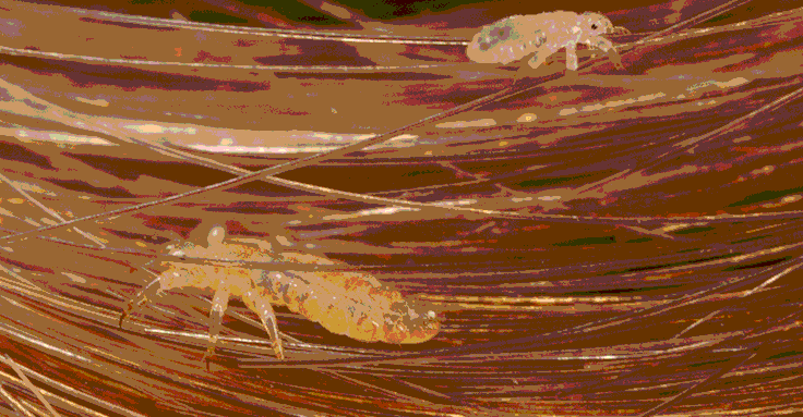 Lice in human's hair.