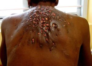 Bot fly infection on human skin