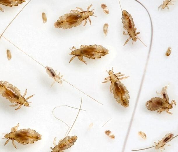 Best Natural Way To Kill Lice