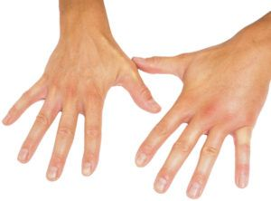 Comparing swollen male hands isolated towards white background.