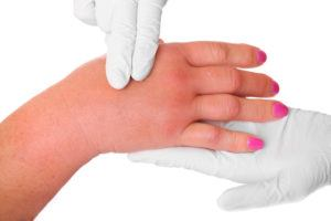 A picture of a swollen hand due to a wasp sting being examined by a doctor over white background.