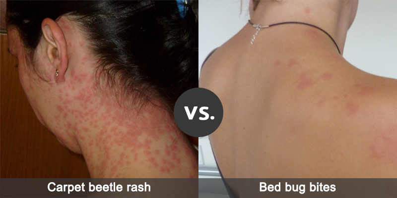 What Types Of Skin Reactions Do Carpet S And Bed Bugs Cause