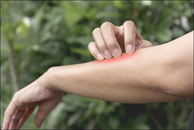 Woman Scratching Red Area on Her Arm